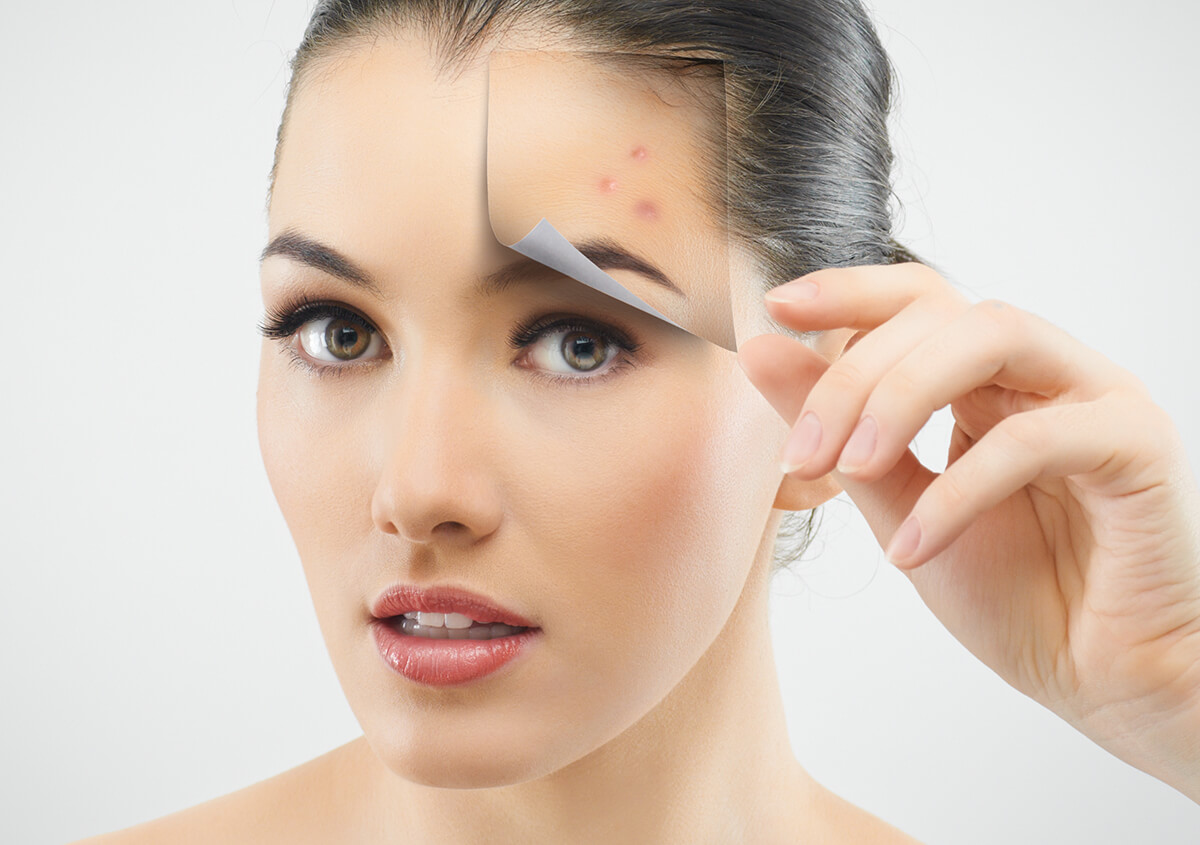 Acne Treatment from a Dermatologist in Plano TX Area