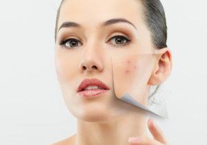 Acne Skin Care in Plano TX Area