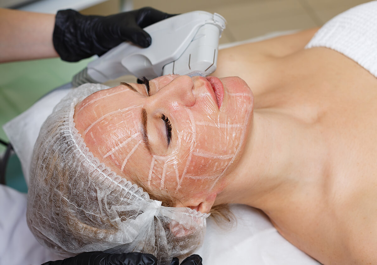 Benefits of Laser Hair Removal in Plano Area