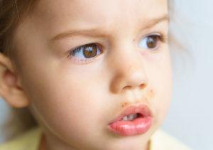 Face Rashes in Children in Plano Area