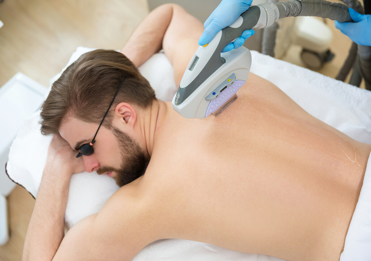 Laser Hair Removal Treatment in Plano Area