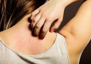 Seasonal Eczema in Plano TX Area