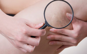 Plano area dermatologists offer varicose vein treatment with sclerotherapy