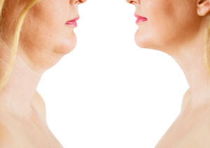 For minimally invasive Kybella double chin removal procedure, set a consultation meeting with Dr. Achtman or Dr. McConnell of DSA Dermatology in Plano, TX