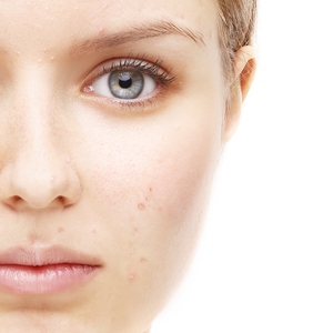 Acne in Plano TX - Acne on Face