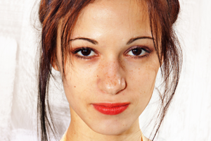 Signs Of Melasma Plano TX - Image for melasma