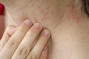 Psoriasis Treatment Plano - Psoriasis Rash on Neck Plano