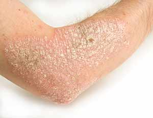 Skin Rashes Plano - Psoriasis Rash on Skin Plano