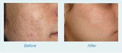 Dermatologist Plano - SkinPen Microtherapy Before and After Set 1