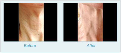 Dermatologist Plano - SkinPen Microtherapy Before and After Set 10
