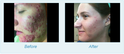 Dermatologist Plano - SkinPen Microtherapy Before and After Set 11