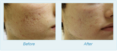 Dermatologist Plano - SkinPen Microtherapy Before and After Set 2