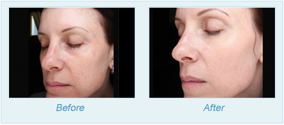 Dermatologist Plano - SkinPen Microtherapy Before and After Set 3