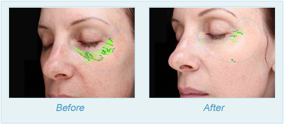 Dermatologist Plano - SkinPen Microtherapy Before and After Set 4