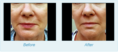 Dermatologist Plano - SkinPen Microtherapy Before and After Set 5