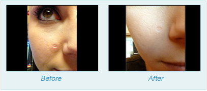 Dermatologist Plano - SkinPen Microtherapy Before and After Set 6