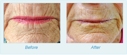 Dermatologist Plano - SkinPen Microtherapy Before and After Set 7