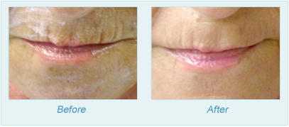 Dermatologist Plano - SkinPen Microtherapy Before and After Set 8