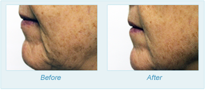 Dermatologist Plano - SkinPen Microtherapy Before and After Set 9