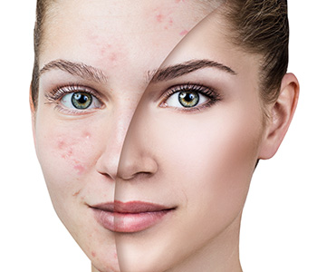 seek treatments for acne in Plano TX area
