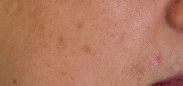 Treatment for Brown Spots on the Face in Plano, TX