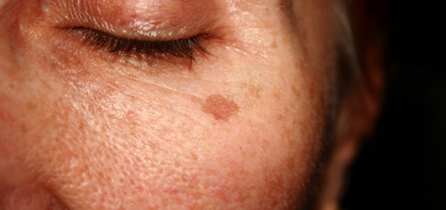 Treatment for Brown Spots on Face in Plano TX area