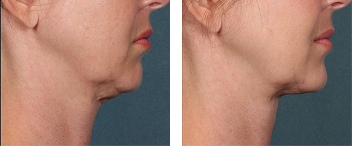Kybella Plano Kybella Injections Plano Kybella For Double Chin Plano