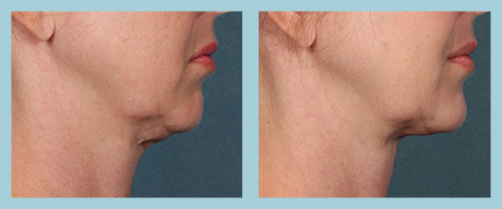 Kybella Plano - Before After 1