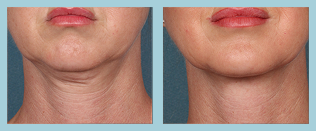 Kybella Plano - Before After 2