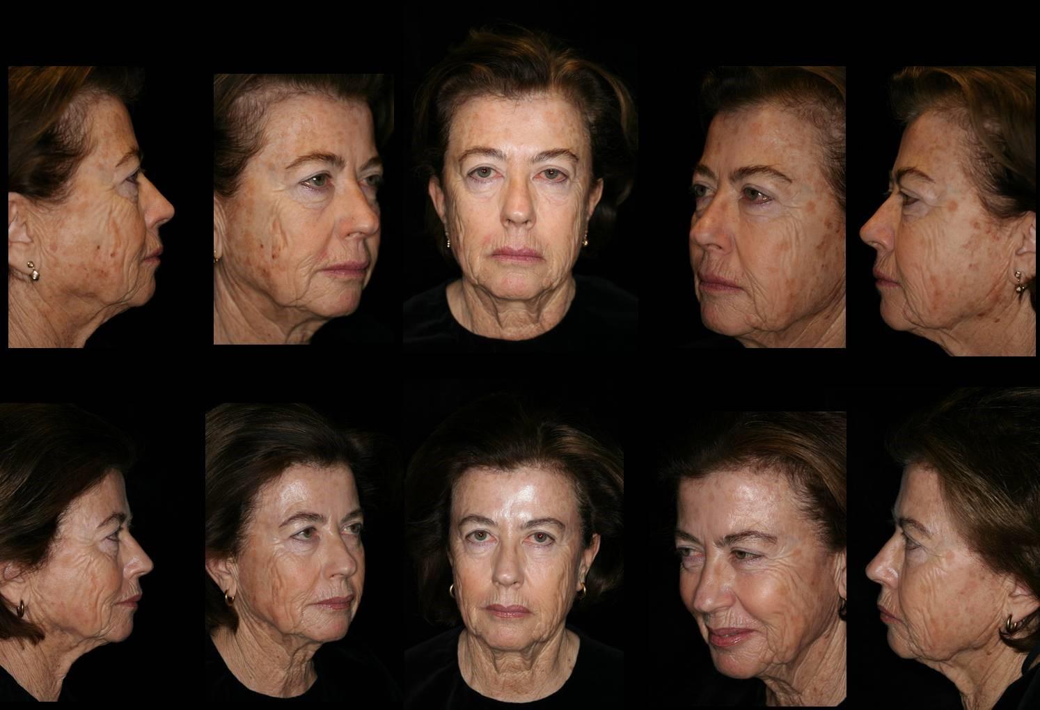 Dermatologist Plano - Laser Treatment
