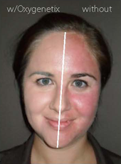 Dermatologist Plano - Before and After Image